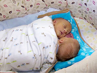Pennsylvania Conjoined Twin Boys Have Died