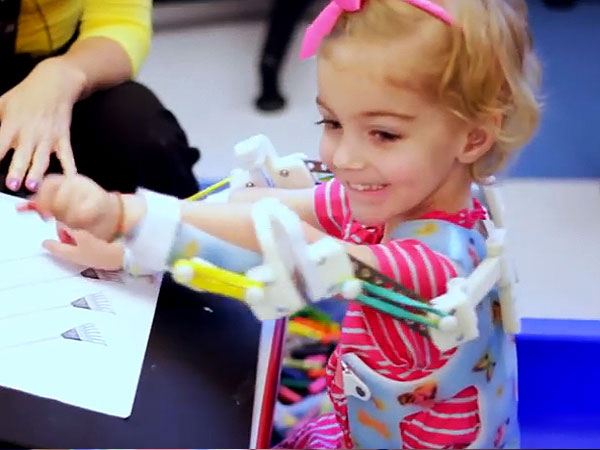 3D Device Lets Emma Lavelle Move Her Arms for First Time