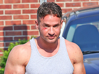 Ouch! Mike 'The Situation' Sorrentino Leaves Jail with a Shiner After Brawl