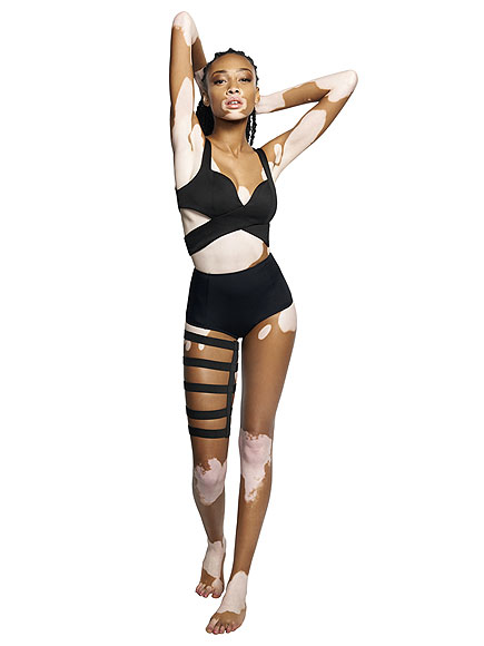 Chantelle Brown-Young, America's Next Top Model Contestant, Has Vitiligo