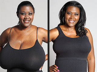 Woman Whose Bra Size Was 36N Gets a Life-Changing Breast Reduction