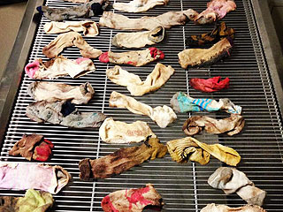 Dog Eats 44 Socks; Vet Removes 43½