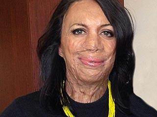 Australian Woman's Magazine Honors Burn Victim Turia Pitt on Cover