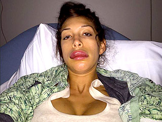 PHOTOS: Was Farrah Abraham Able to Fix Her 'Botched' Lips?