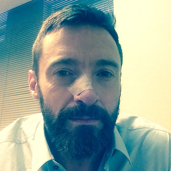 Hugh Jackman: The Moment I Was Told I Had Skin Cancer| Cancer, Coping and Overcoming Illness, Hugh Jackman