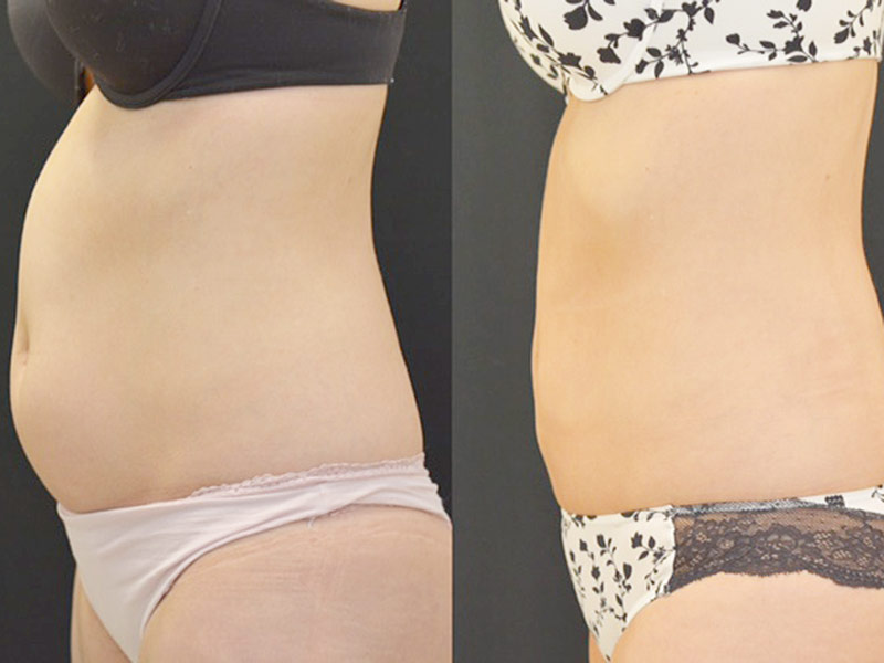 Why Did This Size-0 Woman Get Liposuction? Size Zero Woman's Liposuction