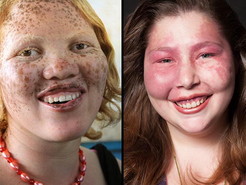 On Beauty Documentary Redefines Beauty Standards