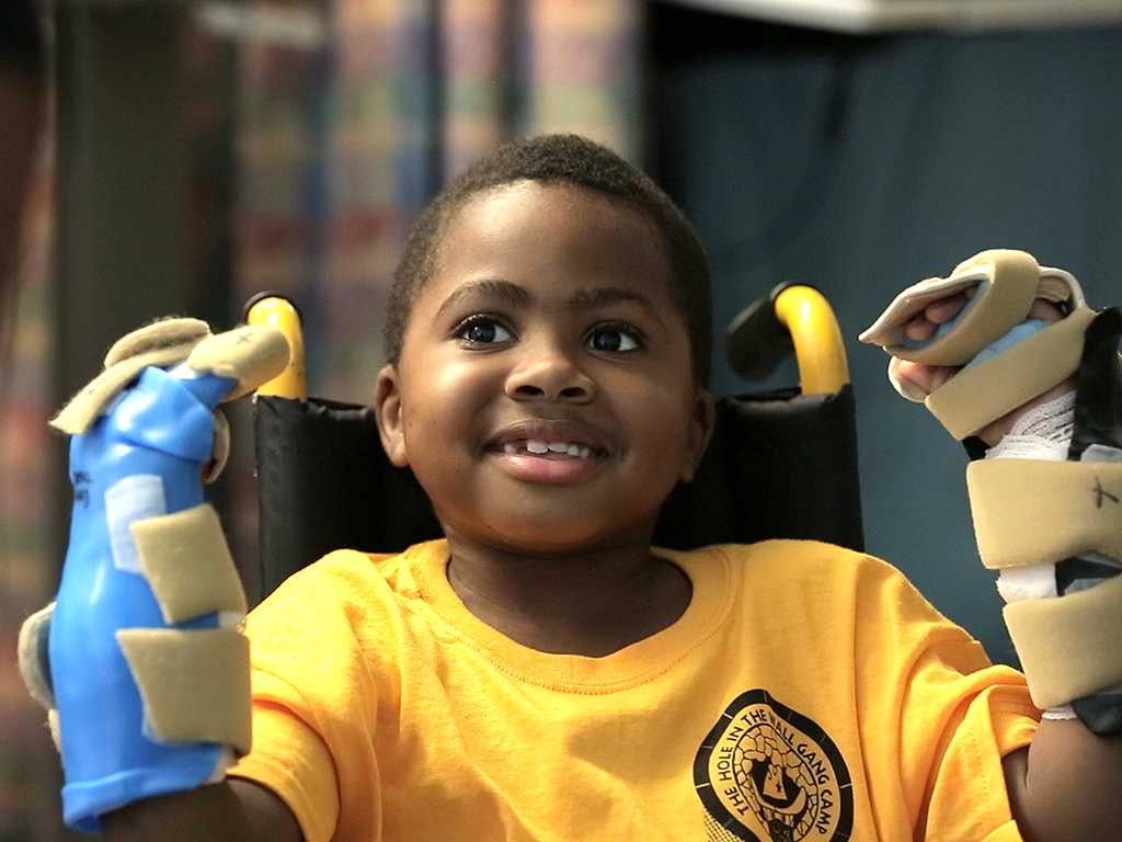 Meet the First Kid in the World to Receive a Double Hand Transplant: 'I Want to Swing on Monkey Bars!'| Medical Conditions, Real People Stories