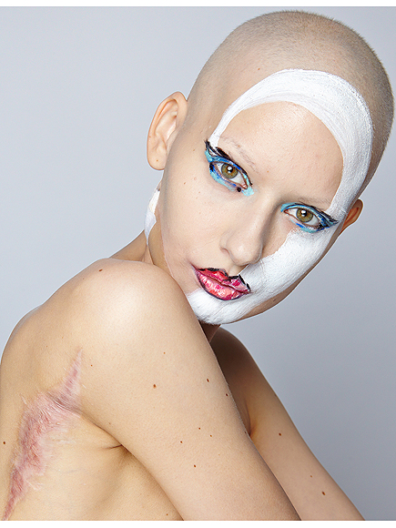 Model Poses for Gorgeous Photo Shoot After Losing Part of Her Jaw to Cancer (Photos)| Cancer, Bodywatch, Models