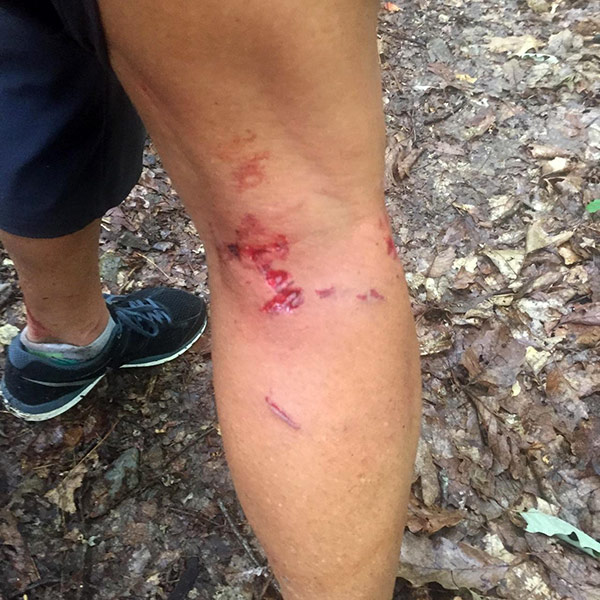Virginia Woman Survives Bear Attack on her Family: 'I Thought We Were Going to Die'| Real People Stories