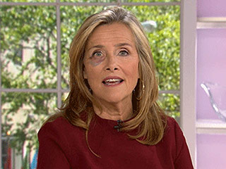 Meredith Vieira Explains How She Got Her Shocking Black Eye