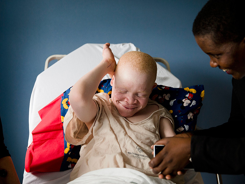 African Children with Albinism Hunted for Limbs in ...