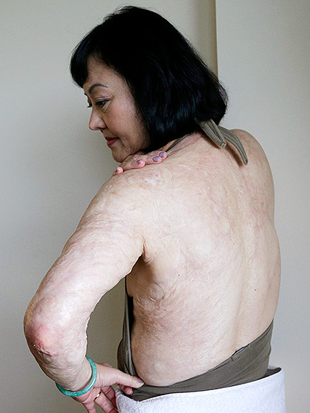 How the Vietnam War's 'Napalm Girl' Is Finally Getting Her Scars Treated – 43 Years Later | Vietnam, Real People Stories