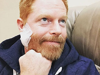Jesse Tyler Ferguson Reveals He Had Cancer Removed from His Face