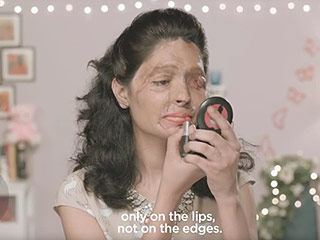 Acid-Attack Survivor Uses Powerful Beauty Vlogs to Raise Awareness