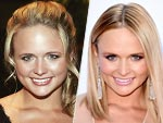 Miranda Lambert's Changing Looks