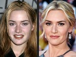Kate Winslet's Changing Looks!