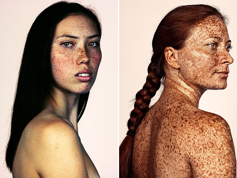 This Photo Series Proves Just How Beautiful Freckles Really Are| Bodywatch