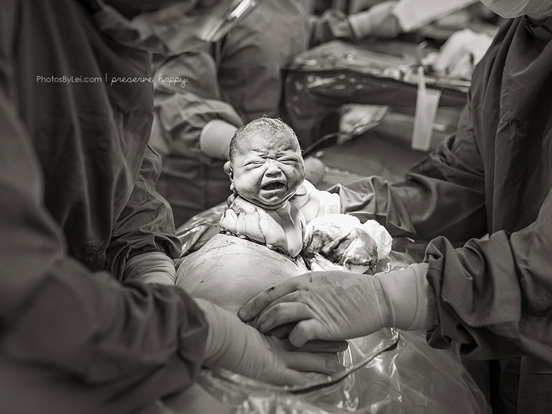 Leilani Rogers Captures the Beauty and Complexity of Birth in ...