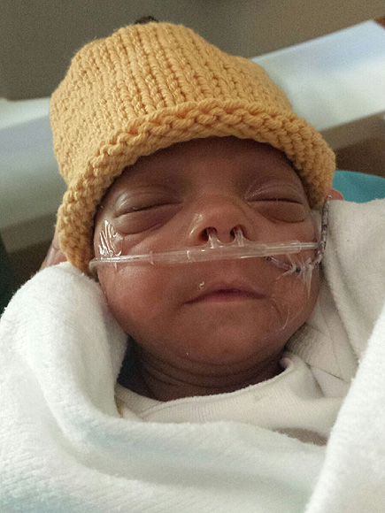 One of the Smallest Babies Ever Born (at Just 10 Ounces) Beats the Odds and Goes Home From Hospital  Babies, Real People Stories