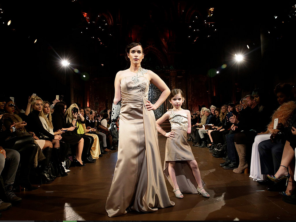Model with One Arm Walks NYFW with Little Girl Born the Same Way