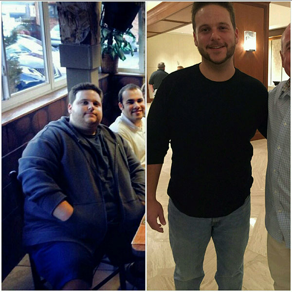 Man Who Became Obese After Death of His Father Drops 187 Lbs., Now Raising Money for Skin Removal Surgery  Diet & Fitness, Body shaming, Amazing Weight Loss, Bodywatch