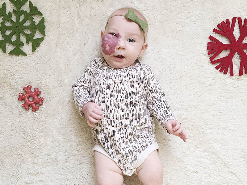 Mom Pens Emotional Social Media Post About Her Baby Girl With Hemangioma