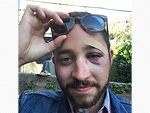 New York Man Punched in the Face on Subway Because He 'Looks Exactly Like Shia LaBeouf'