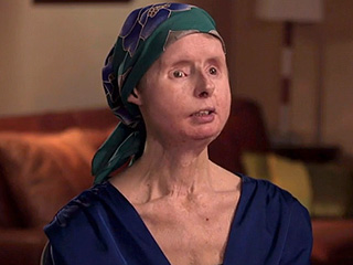 Charla Nash Reacts to Facial Transplant Rejection: 'I Never Thought I'd Be Like This'
