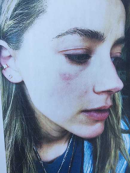 Amber Heard's Shocking Abuse Claims Against Johnny Depp: Details of Alleged Attack 2 Days Before She Filed for Divorce| Couples, Physical Abuse, Movie News, Amber Heard, Johnny Depp