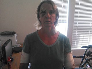 Woman Attacked by Bear While Running a Marathon Speaks Out: 'I Am So Sorry We Were Both Hurt'