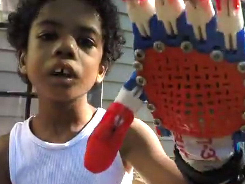 8-Year-Old Michigan Boy Gets New Superhero-Themed Prosthetic Hand: 'I Got an Arm!'