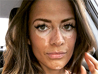 Former Model Breanne Rice Is Done Hiding Her Vitiligo: 'I Was Basing My Self-Worth on How I Looked'