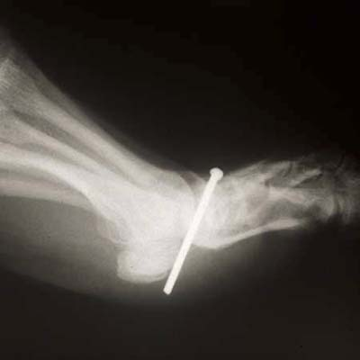 http://img2.timeinc.net/toh/i/g/0807_nailgun/nail-gun-foot.jpg